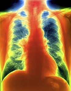 Coloured frontal chest X-ray of a patient with a carcinoid tumour (red, centre left) in their right lung.