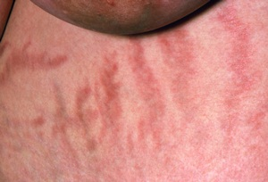 Photo of stretch marks on a woman suffering from Cushing's syndrome.