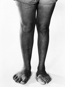 Enlargement of the feet due to pituitary hyperfunction (gigantism).