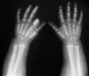 X-ray of the hands of a six year old with hypothyroidism: growth of the left index finger has been stunted.