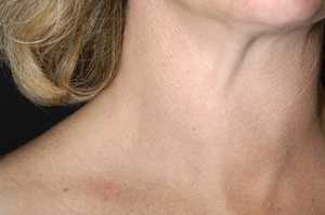 Swollen <a href='/glands/thyroid-gland/'>thyroid gland</a> in the throat of a 41-year-old woman with multinodular goitre.