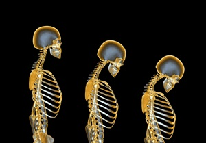Computer artwork of a human female skeleton degenerating due to osteoporosis. At left is a normal skeleton. The degeneration, seen from left to right over time, is the loss of height and the backwards curvature of the spine.