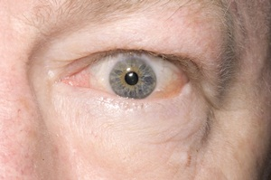 Bulging left eye of a 58-year-old man with thyrotoxicosis.